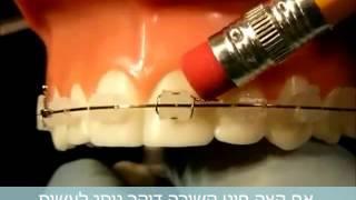 מידע למטופל המתחיל יישור שיניים