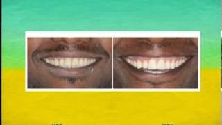 רפואת שיניים קוסמטית