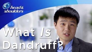 What Is Dandruff? קשקשים