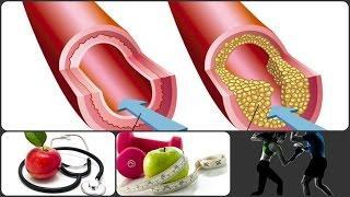 טרשת עורקים סוכרת ושומנים בדם