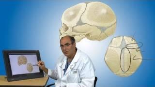 Craniosynostosis And Its Treatment | Boston Children's Hospital קרניוסינוסטוזיס