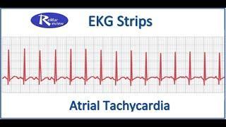 NCLEX EKG STRIPS: Atrial Tachycardia טכיקרדיה פרוזדורית