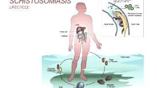 Webinar: Schistosomiasis - Diagnosis And Treatment (2014) בילהרציה
